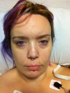 12-28-12 hernia surgery